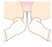 用手肛門拡張術