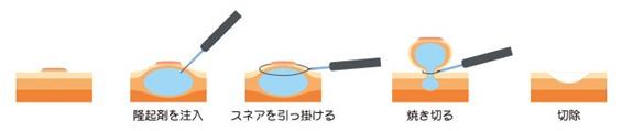 内視鏡的粘膜切除術の方法