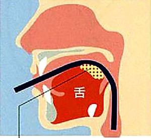 口からの胃内視鏡