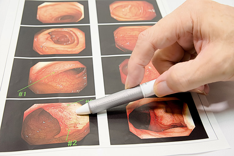 ピロリ菌検査で、胃がん予防